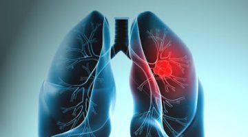 Akçiğer Kanseri Hakkında Bilinmesi Gerekenler Neler?