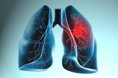 akçiğer kanseri