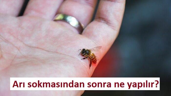 Arı sokmasından sonra ne yapılır?