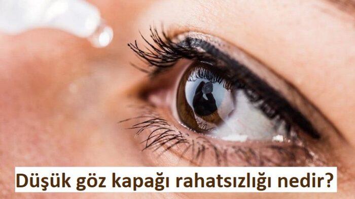 Düşük göz kapağı rahatsızlığı nedir?