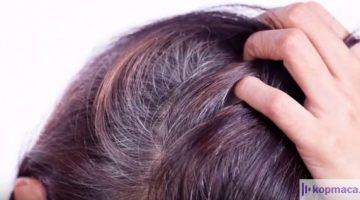 Beyaz Saçlarımı Nasıl Kapatabilirim? Beyaz Saçlara Bitkisel Kür Var Mı?