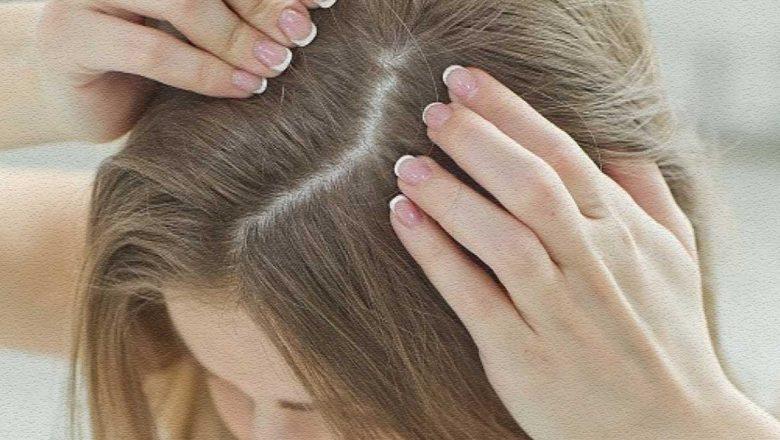 Sağlıklı Saç ve Saç Derisi İçin Ne Yapılmalıdır?