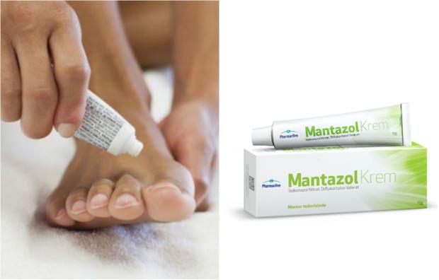 mantazol krem nedir? nasıl kullanılır?